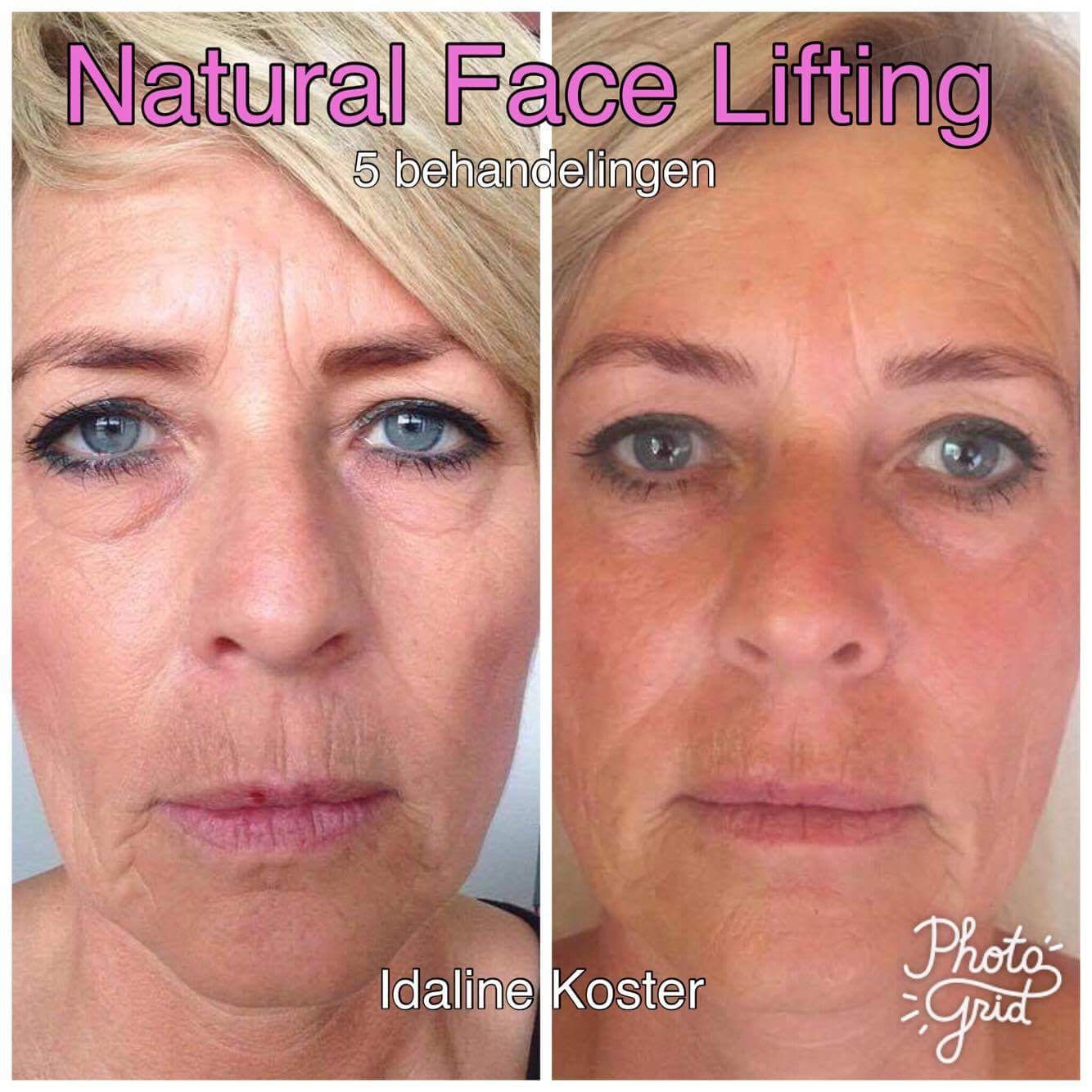 Resultaat Natural Face Lifting door Idaline Koster